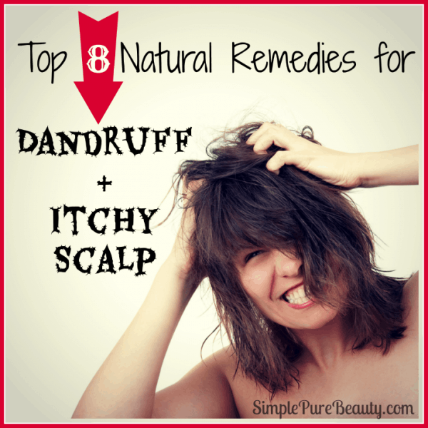 Top 8 Natural Home Remedies for Dandruff and Itchy Scalp