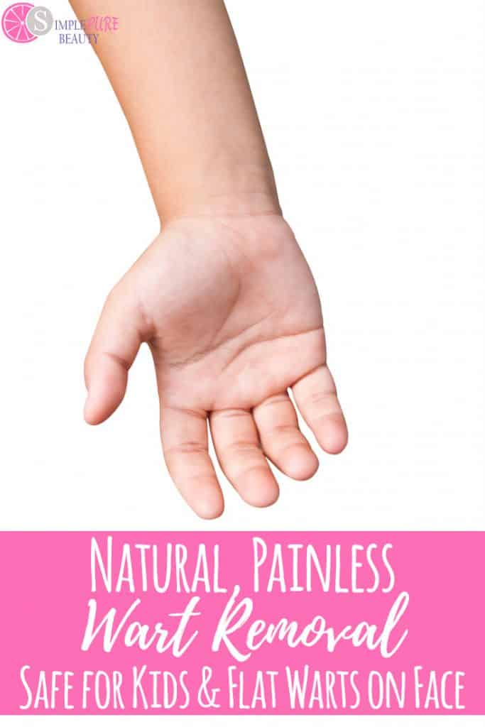 Natural, Painless Wart Removal: Safe for Kids and Flat Warts on Face #diyskincare #wartremoval #plantarwarts #naturalbeauty