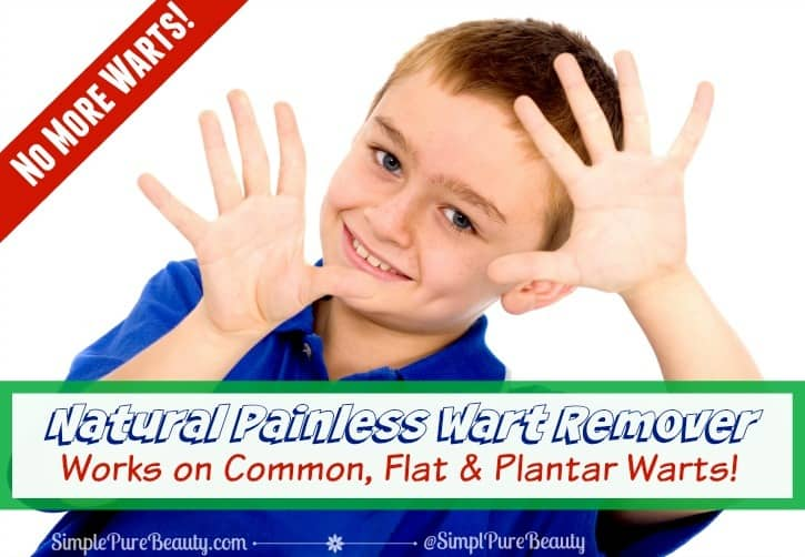 After trying all of the conventional wart removal remedies, we finally found this natural wart removal for kids. It worked on regular warts, flat warts and even plantar warts! Love this!