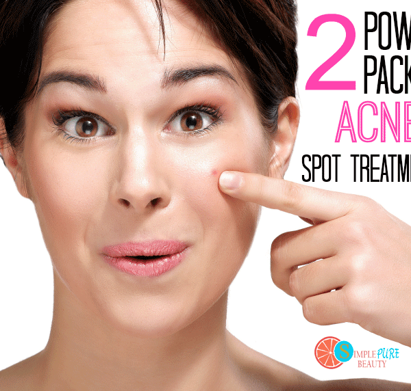 2 Power Packed Acne Spot Treatments Using Just 2 Ingredients