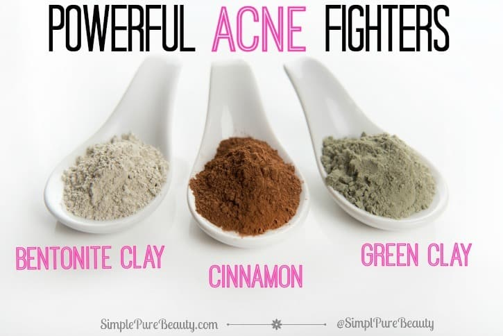 2 Power Packed Acne Spot Treatments Using Just 2 Ingredients | SimplePureBeauty.com