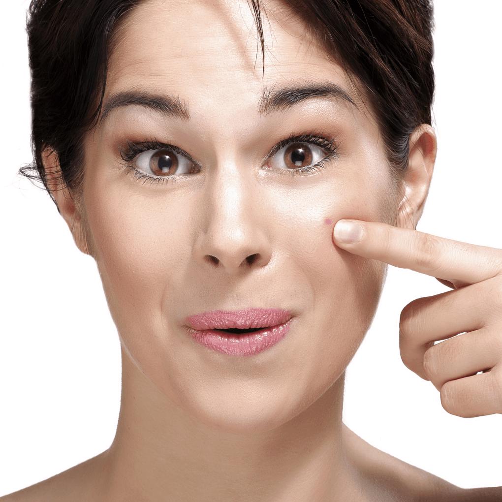 Honey Acne Spot Remedy