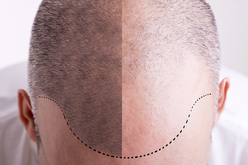 One of the most common causes of hair loss in women as well as men, genetic hair loss is much more of a genetically predisposed condition than it is a disease or illness. This type of hair loss usually announces itself by a subtle thinning of hair, which can gradually progress to complete hair loss or baldness on certain parts of the scalp. #hairloss #hairgrowth #natural