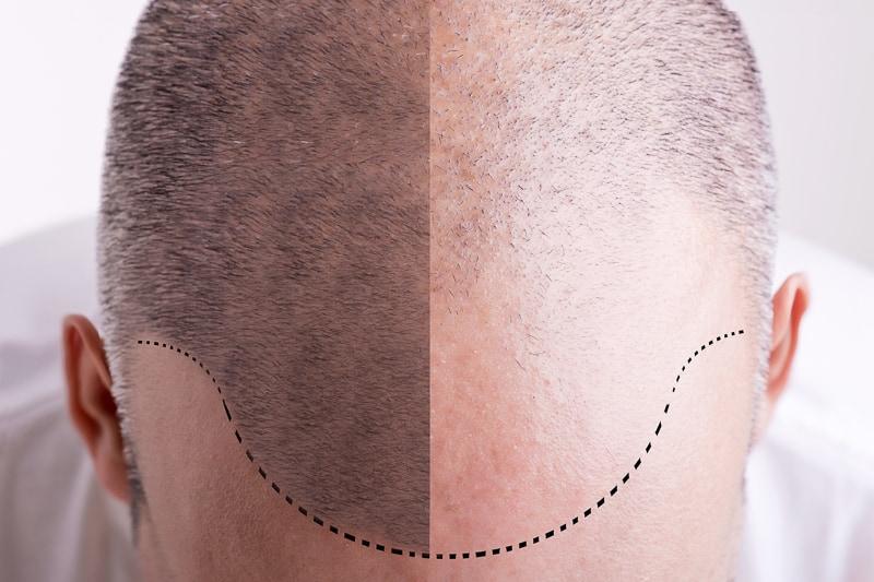 man's balding head
