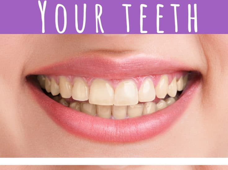 Whitening your teeth naturally is simple to do! With these simple DIY tips, you can have the brightest smile in the room in no time at all! #naturallywhitenyourteeth #brightsmile #whitenyourteeth #DIY #homemadeteethwhitener